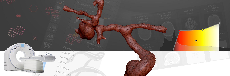 Dr. Samuel Damin: Using CT for Medical 3D Visualization